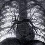 Angiopulmonografiya